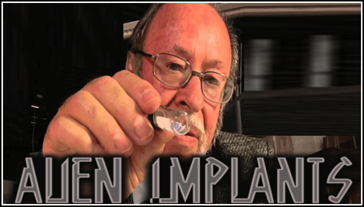 Инопланетные импланты